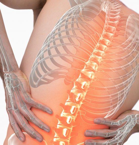 Rücken Schmerz 1 (1)